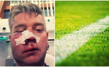OPINION: 'Ah ref!' - Mouthy sideline parents have created culture of violence in sport